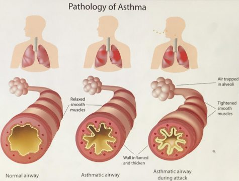 As you can tell, a person without asthma has a wider and more open airway compared to a person struggling with asthma. One in every thirteen people have asthma, including adults and children.